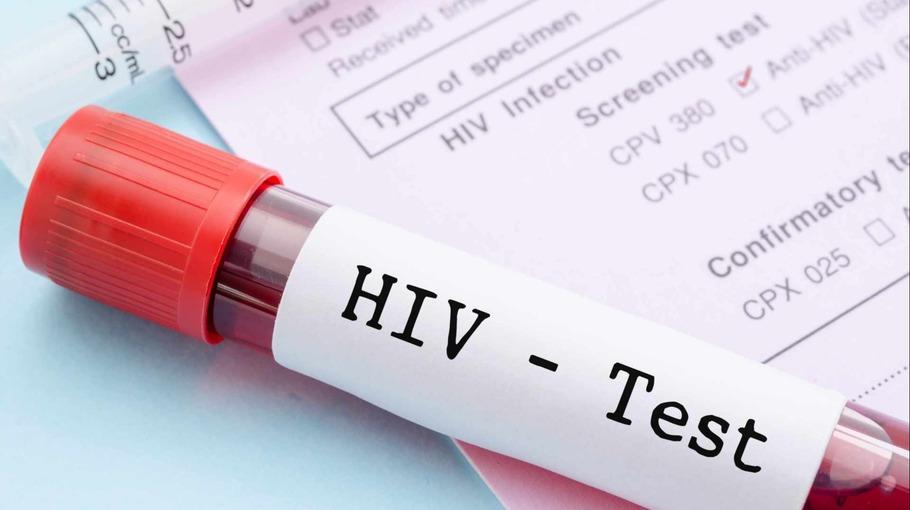 Порядка 3 000 человек посетили анонимные пункты тестирования на ВИЧ