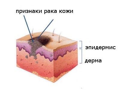 """Бесплатный осмотр онколога в рамках акции """"Предотврати рак кожи!"""""""